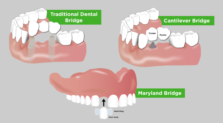 Three diagrams show how traditional, Cantilever, and Maryland dental bridges operate in the mouth.