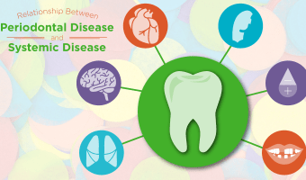 Without regular checkups at a dentist, you may not even know you have periodontal disease, but it could be impacting your overall health nonetheless.