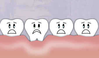 A receding gum line can't grow back, but it can be prevented. Learn more about what causes our gums to recede.