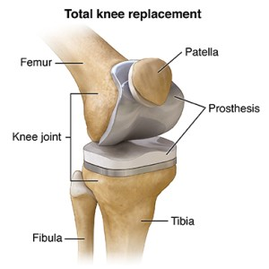 Total Knee Replacement Treatment, Symptoms & Conditions
