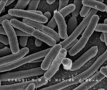 תמונת Escherichia coli תחת מיקרוסקופ אלקטרונים סורק