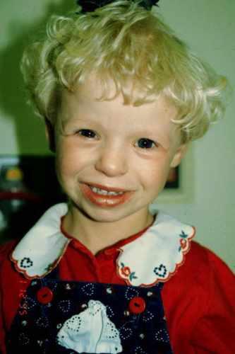 ילדה עם תסמונת ויליאמס המייצגת תצורות פנים אופיניות: מצח רחב, חריץ בעפעפיים, גשר אף נמוך, נחיריים קטנות, לחיים מלאות ופה יחסית גדול ובמקרים רבים פונה מטה. מתוך אתר אוניברסיטת יוטה