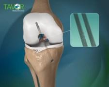 רצועה מלאכותית לברך העשויה מסגסוגת מיוחדת של חברת TAVOR