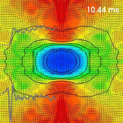 איתור גלעיני סופרנובות בעזרת חלקיקי ניטרינו וגלים גרביטציונים. איור: קלטק.