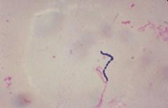 חיידק המעיים המפורסם סטרפטוקוקוס. מתוך ויקיפדיה
