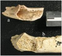 עצמות ניאנדרטל שחי לפני 120 אלף שנה באיזור שהיום הוא קרואטיה, ועליהן גידול סרטני. צילום: Janet Monge et al