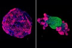 גן APC מכובה משמאל ומודלק מימין, רואים שהגידול הצטמק. איור: מרכז הסרטן Memorial Sloan Kettering