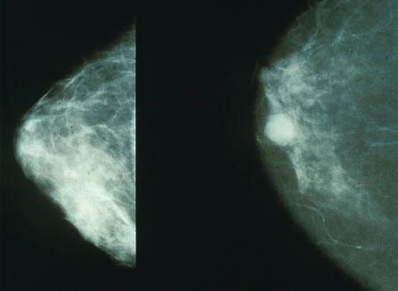 צילום רנטגן של שד בריא (שמאל) לעומת שד עם סרטן. מקור: ויקימדיה.