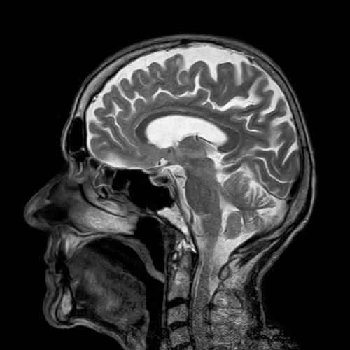 סריקת MRI. מקור: pixabay.com.