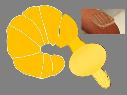 התחבושת החדשנית המבוססת על תולעת פרזיטית בשם Pomphorhynchus laevis. התמונה באדיבות Dr.Karp.