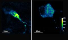 ירידה בספיגת הסידן במיטוכונדריה בתאים שבהם נוטרל הגן MTCH2. בתצלום השמאלי נראה תא עצב שלא הונדס גנטית. בתצלום הימני נראה תא עצב מהונדס (ללא MTCH2). לתאים הוחדרו חיישנים פלואורסצנטיים במטרה להאיר את ספיגת הסידן במיטוכונדריה, ולמצע הגידול של התאים הוסף סידן. כפי שניתן לראות, החיישנים מאירים באופן משמעותי פחות בתא המהונדס (סקאלת הצבע נעה מכחול, המלמד על קליטת סידן נמוכה, עד צהוב, המצביע על קליטת סידן גבוהה), דבר המעיד על פגיעה בספיגת הסידן במיטוכונדריה. מקור: מתוך המאמר.