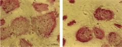מושבות תאי גזע עובריים כפי שהן נראות במיקרוסקופ: התאים התמיינו באופן מסודר כאשר הגנום שלהם הכיל עותק תקין של הגן p53 (משמאל), אך לא כאשר p53 היה חסר (מימין). מקור: מגזין מכון ויצמן.