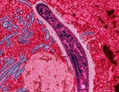 טפיל Plasmodium הגורם למחלת המלריה. מקור: Ute Frevert / Margaret Shear / Wikimedia Commons.