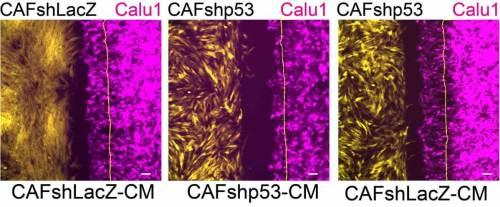 השפעת ה-p53 בתאי פיברובלסט על נדידת תאי סרטן: תאים סרטניים (אדום מגנטה) נודדים לכיוון פיברובלסטים תומכי סרטן (צהוב) המבטאים את הגן p53 (שמאל); הנדידה פוחתת (מרכז) כאשר מושתק ה-p53 בפיברובלסטים; כאשר מוסיפים לתרבית התאים חומרים שמפרישים הפיברובלסטים תומכי הסרטן, חוזרת הנדידה לאיתנה (ימין). איור, מכון ויצמן