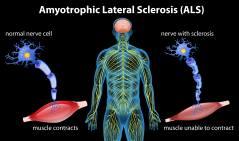 מחלת ה-ALS. איור: shutterstock
