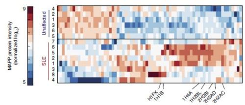 """חתימה ייחודית למחלת הזאבת. פרופיל MAPP של """"פסולת"""" חלבונים באנשים בריאים (למעלה) ובחולי זאבת (למטה). באדיבות מכון ויצמן"""