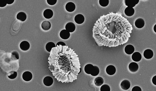 חלקיקי אצות שנפלטו מדגימות שהודבקו בנגיף. במקום חלקיקים שגודלם עד מיקרון, התגלו שרידי פיטופלנקטון בגודל של עד ארבעה מיקרונים