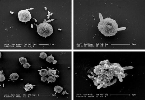 חיידקים חובבי גופרית תוקפים תאי אצה ממין Emiliania huxleyi מקור, פרופ' אסף ורדי. מכון ויצמן