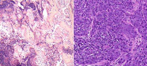 גידולים בבלוטות החלב של עכברות תחת מיקרוסקופ: גידולים שבהם חסר הגן LATS1 מפתחים מאפיינים של סרטן שד בזאלי (שמאל); לגידולים שחסר בהם הגן LATS2 יש מאפיינים לומינליים וחלים בהם שינויים מטבוליים (ימין)