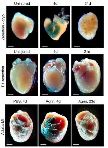 הזדקנות בת חלוף: לבבות של דג זברה (שורה עליונה), עכבר שזה עתה נולד (שורה אמצעית) ועכבר בוגר (שורה תחתונה) נראים (בעמודה השמאלית) כמעט ללא פיברובלסטים מזדקנים (המסומנים בצבע טורקיז). לאחר פגיעה בשריר הלב (שלוותה בזריקות אגרין בעכבר בוגר), פיברובלסטים רבים עברו למצב של הזדקנות (עמודה אמצעית), אשר חלף כעבור כשלושה שבועות (עמודה ימנית)