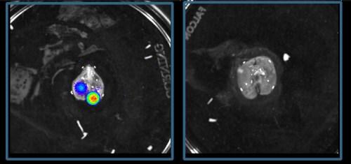 ריאות של עכבר לא מטופל עם סרקומה על-שם יואינג (משמאל) המכילות תאי סרטן רבים (המסומנים בצבעים זוהרים) שהתפשטו מהעצמות, לעומת ריאות נקיות כמעט לגמרי של עכבר אשר טופל בתרופה המפחיתה את ייצור הגלוקוקורטיקואידים (מימין)