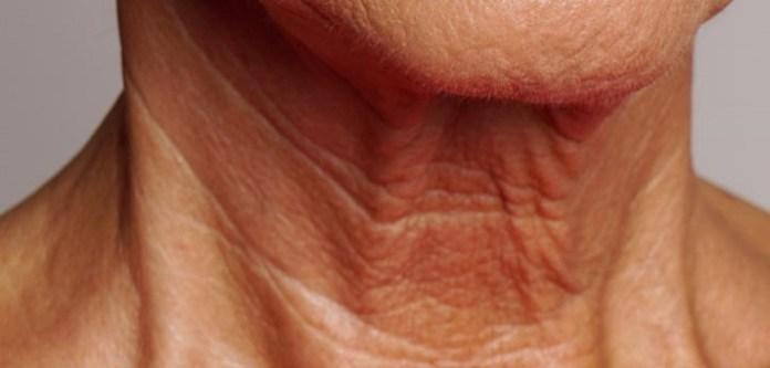 Boyun Kırışıklıkları Nasıl Önlenir?