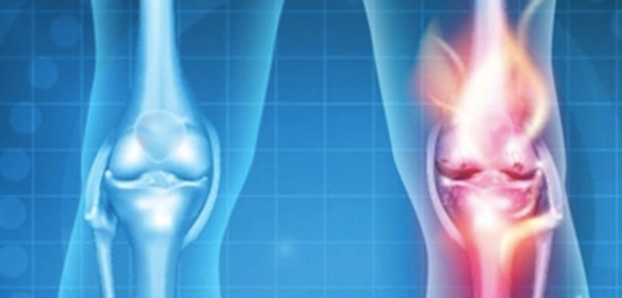 Diz Ağrısı ve Diz Güçlendirme Egzersizleri