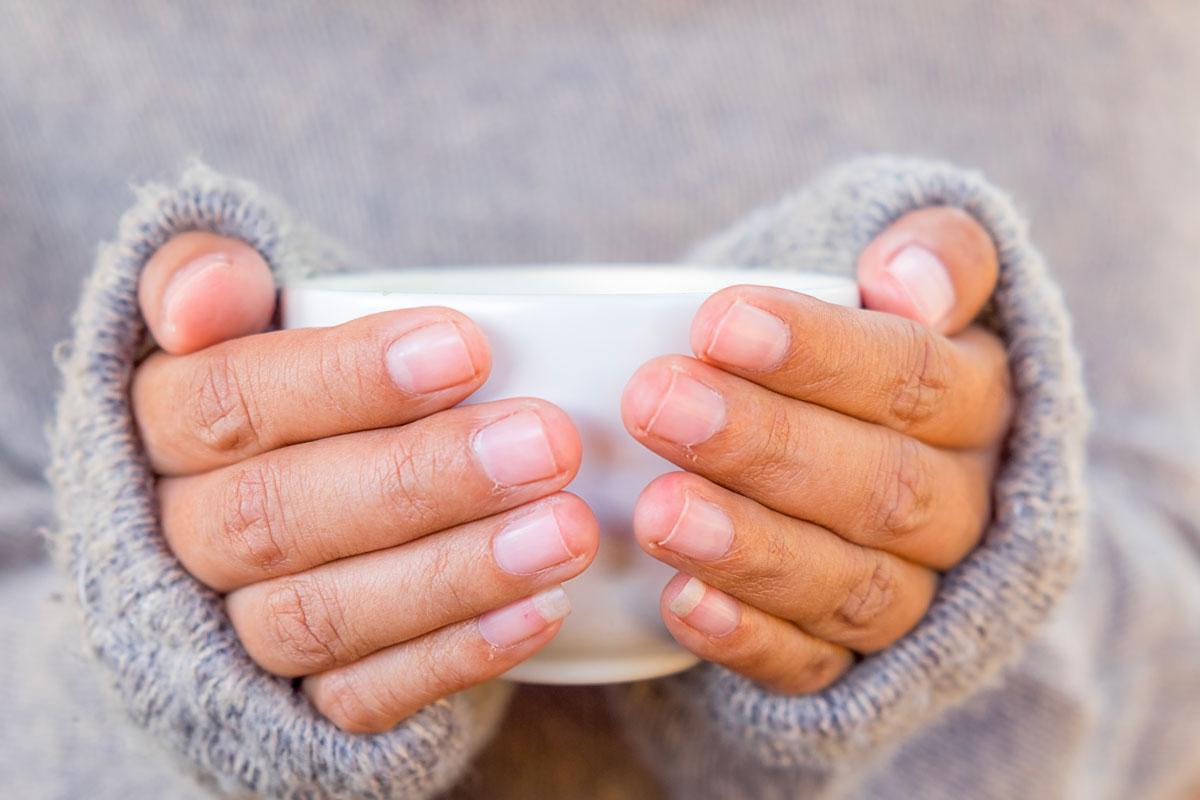Mani screpolate in inverno: i rimedi naturali e cosmetici