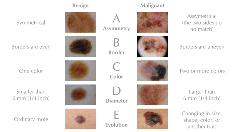 Image result for abcde's of melanoma