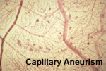 Capillary Aneurism আপনার প্রয়োজনীয় পোস্ট লিংক। আপনার প্রয়োজনীয় পোস্ট লিংক। Capillary Aneurism 300x201