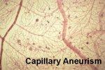 Capillary Aneurism