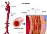 aorta আপনার প্রয়োজনীয় পোস্ট লিংক। আপনার প্রয়োজনীয় পোস্ট লিংক। aorta 300x219