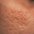 ব্রণের (acne) চিকিৎসা ও প্রতিরোধ (২৭৬ রুব্রিক ও ভিডিও টিউটোরিয়াল সহ) ব্রণের (Acne) চিকিৎসা ও প্রতিরোধ (২৭৬ রুব্রিক ও ভিডিও টিউটোরিয়াল সহ) Acne Scarring 2 150x150