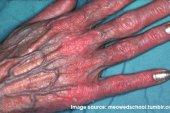 চামড়ার ক্ষয়প্রাপ্তি (Atrophy skin)