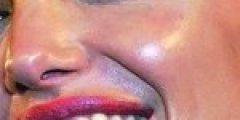 ব্রণের (acne) চিকিৎসা ও প্রতিরোধ (২৭৬ রুব্রিক ও ভিডিও টিউটোরিয়াল সহ) ব্রণের (Acne) চিকিৎসা ও প্রতিরোধ (২৭৬ রুব্রিক ও ভিডিও টিউটোরিয়াল সহ) GREASY 150x150