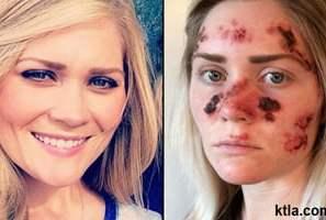 স্কীন ক্যান্সারের (Skin Cancer) চিকিৎসা