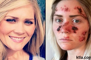স্কীন ক্যান্সারের (Skin Cancer) চিকিৎসা স্কীন ক্যান্সারের (Skin Cancer) চিকিৎসা Skin cancer