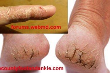 চামড়া ফাটা (Crack skin) রোগের চিকিৎসা চামড়া ফাটা (Crack skin) রোগের চিকিৎসা CRACKS skin