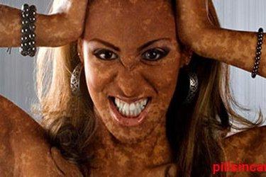 মেস্তা, শ্বেতি, ছুলি সহ সকল প্রকার বর্ণবিকৃত চামড়ার চিকিৎসা ও ৮৯ টি রুব্রিক। মেস্তা, শ্বেতি, ছুলি সহ সকল প্রকার বর্ণবিকৃত চামড়ার চিকিৎসা ও ৮৯ টি রুব্রিক। Skin discoloration