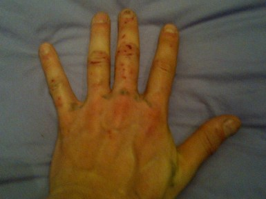 Stephane's hand after Angel