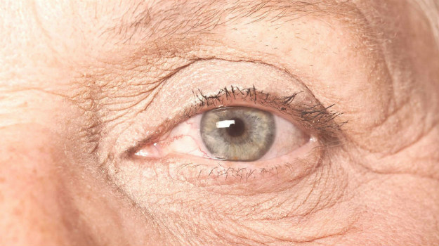 Macular Degeneration Treatments: Natural Ways To Reverse This Eye Condition | Macular Degeneration Guide | Healing The Eye
