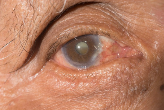Cataract Treatment Without Surgery Know Your Options