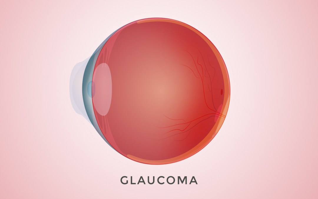 Common Risk Factors For Glaucoma