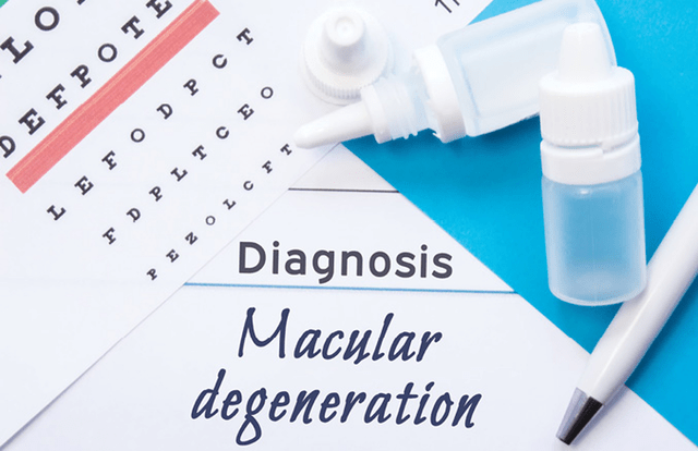 Symptoms & Treatment for Age-Related Macular Degeneration