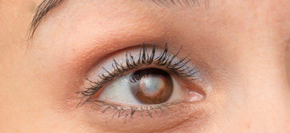Eye Drops Reverse Cataracts