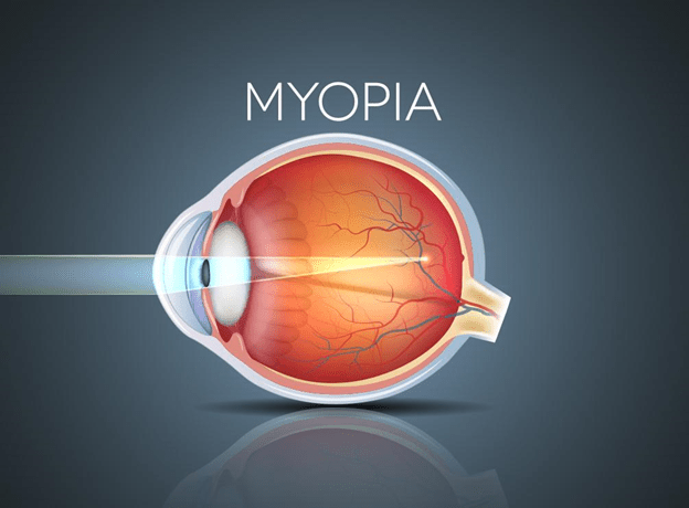 How can you effectively slow down Myopia?