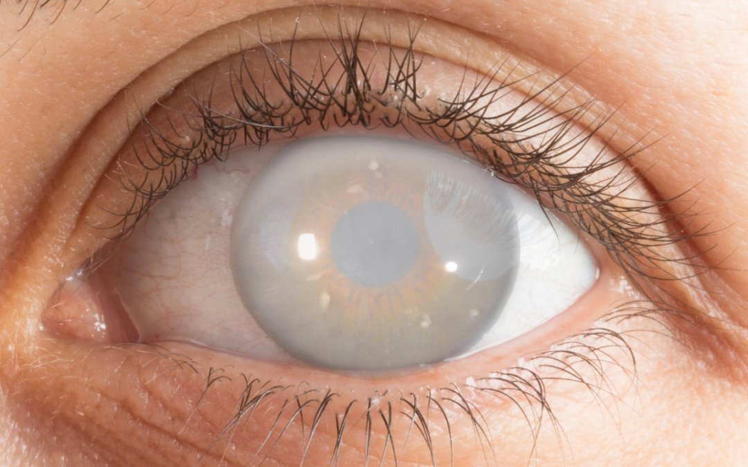 Should I take Cataract Surgery?