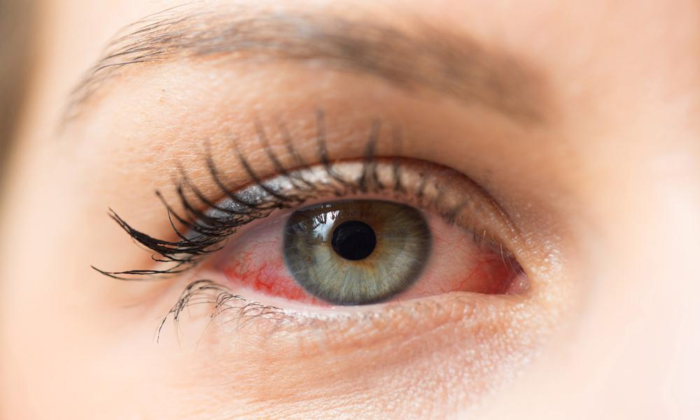 Super Fascinating Facts About The Human Eye You Probably