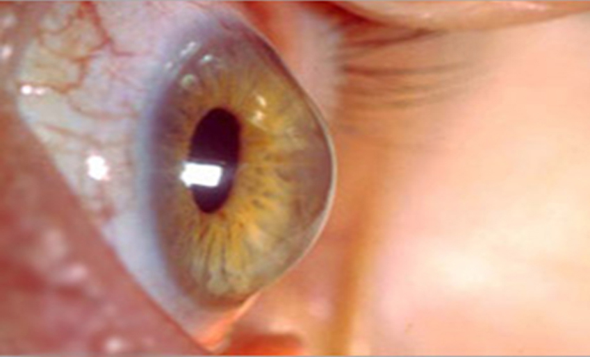 What is Keratoconus And How does it affects your Eyesight?