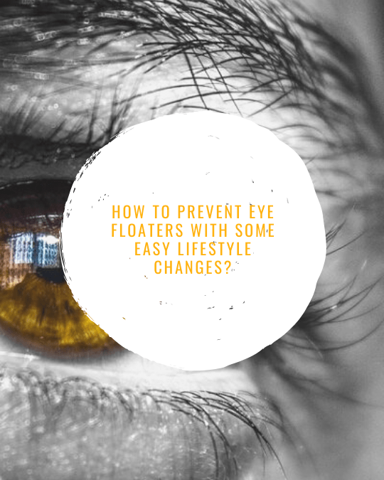 How To Prevent Eye Floaters With Some Easy Lifestyle Changes?
